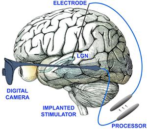 visual prosthesis