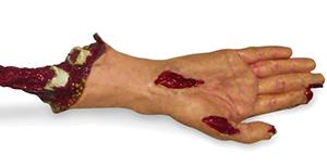 Moulage arm